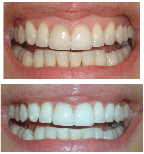 whiten-teeth-crest-white-strips-before-after